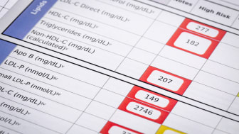 red flags for high risk cholesterol- a detail of blood laboratory screening results with focus on lipids panel